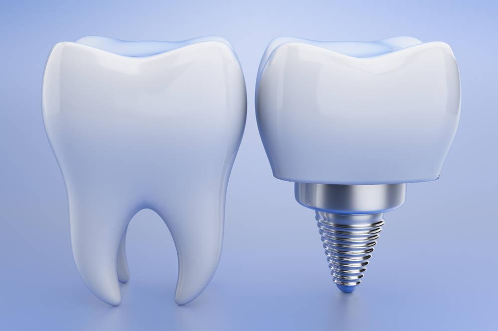 impalntes dentales