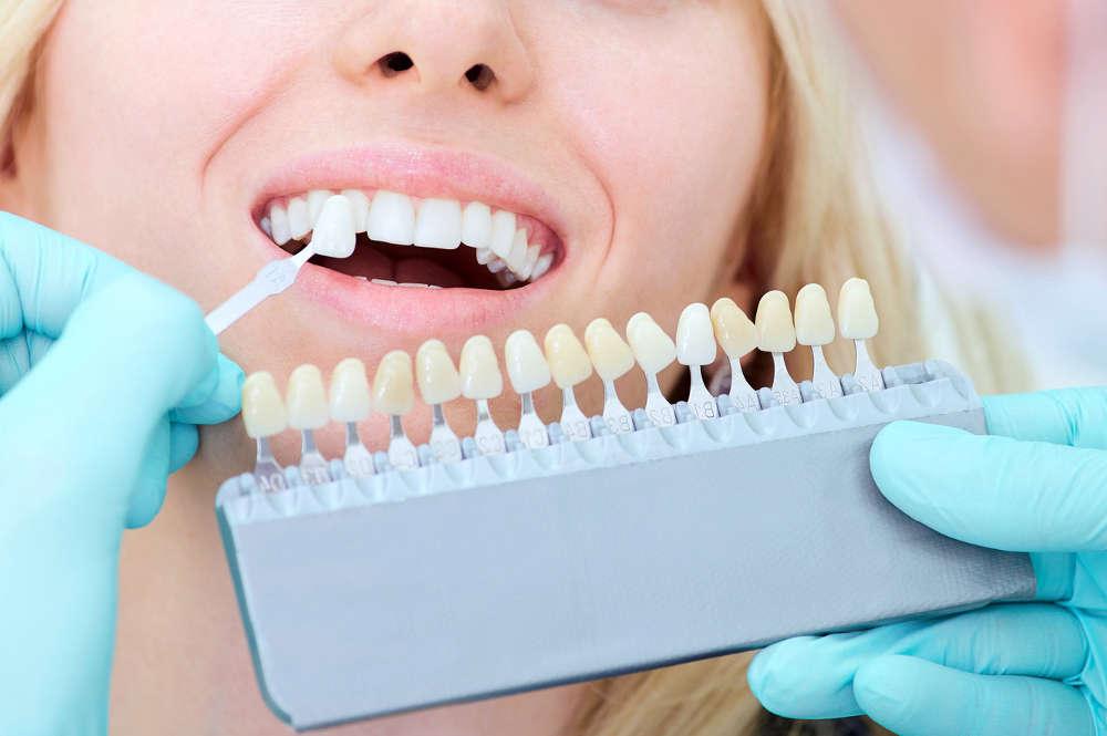 estetica dientes