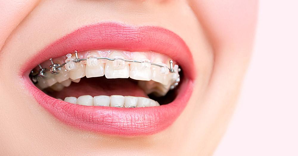 ortodoncia-estetica-burgos