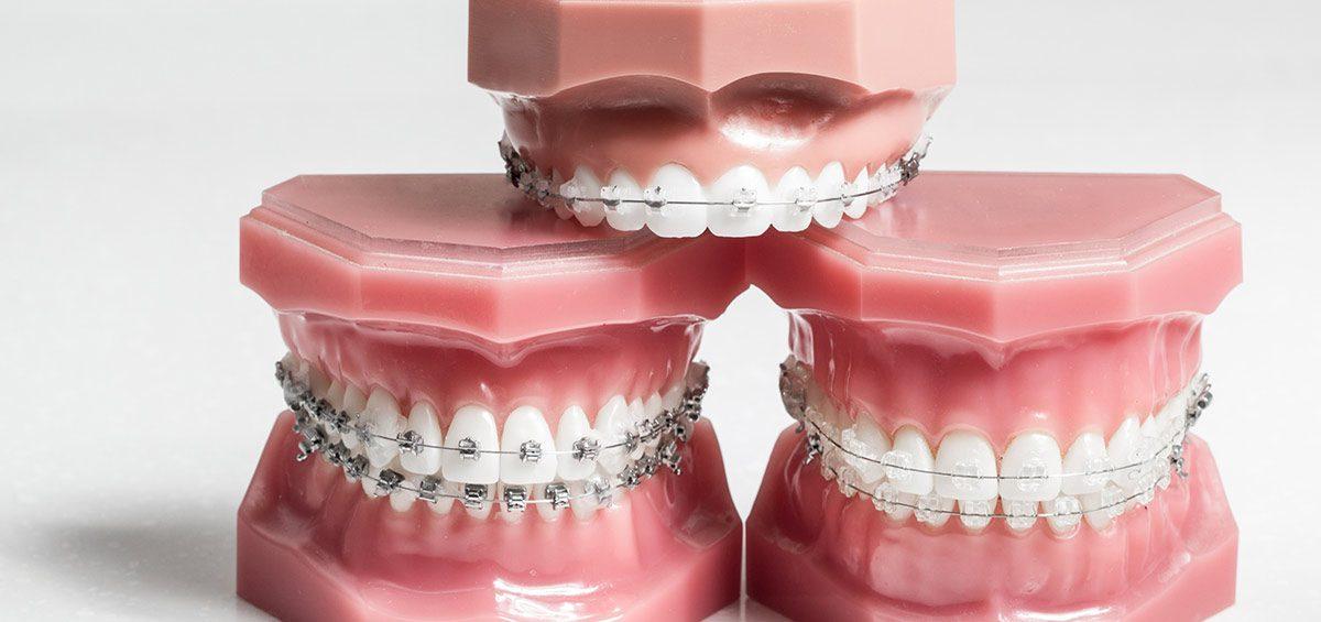 brackets-esteticos-convencionales