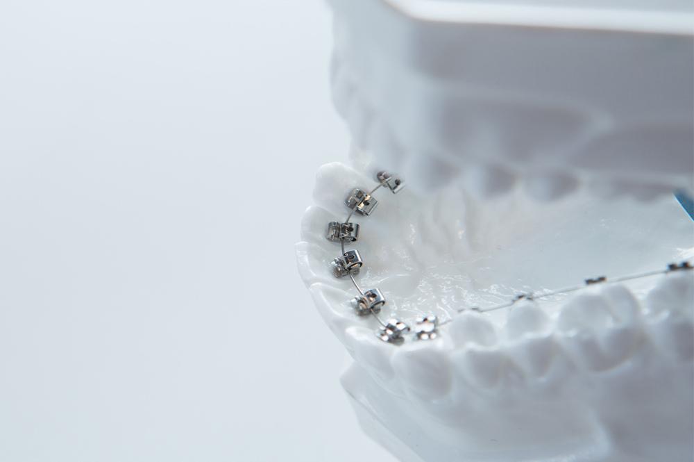 ortodoncia-lingual-burgos