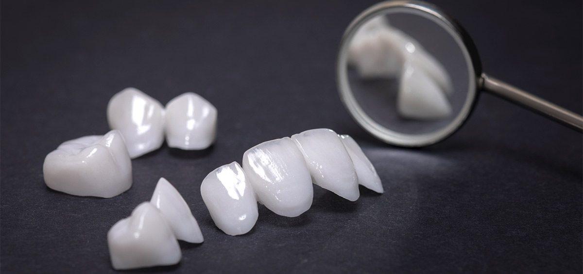 protesis-dentales-fijas