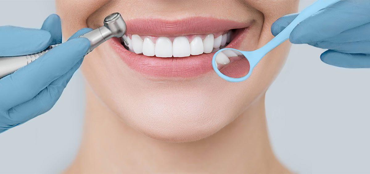 manchas-dientes