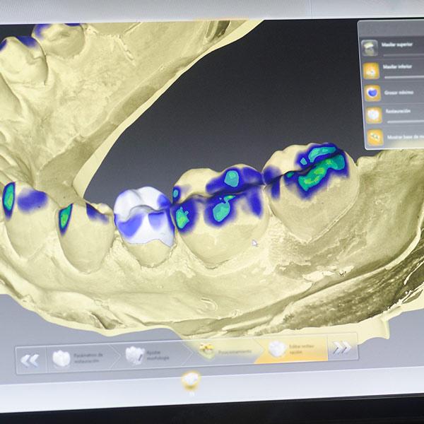 implantes guiados por ordenador